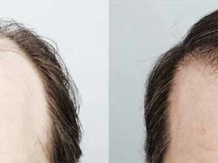 Hair Transplant In Karachi Most Advance & Safe FUE Technique Of Hair Transplant